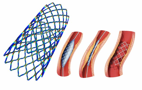 Study of the dynamic behavior of a self-expanding stent according to the artery pressure cycle - FORGE® simulation.